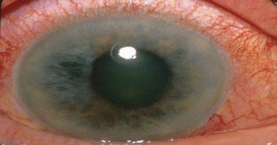 Dai ricercatori dell'Alma Mater un collirio contro il glaucoma