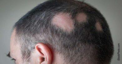 parrucche ai malati di alopecia