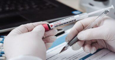 test sierologico emilia romagna bologna coronavirus covid19